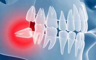 Техника сложного удаления зуба мудрости и показания к процедуре