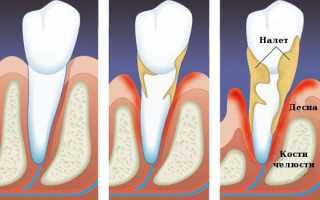 Запущенная болезнь может привести к потере зубов! Пародонтоз: чем его лечить?