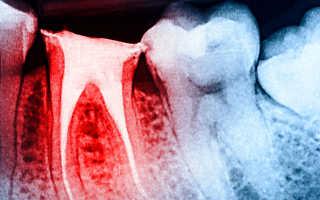 Эндодонтическое лечение зубов — что это такое и когда оправдано
