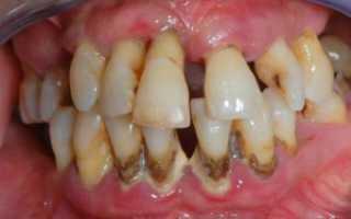 Полезно знать каждому: чем полоскать рот при пародонтозе?