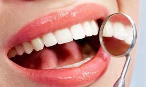 Фторирование зубов у детей: лучший возраст, показания, вред
