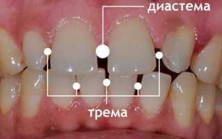 Как убрать щель между передними зубами и забыть о диастеме