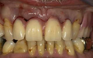 Насколько опасно появление крови из-под коронки зуба и что делать?