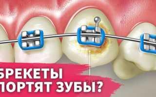 Как восстановить эмаль после снятия брекетов