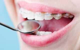 Шатается зуб в брекетах – норма или тревожный симптом?