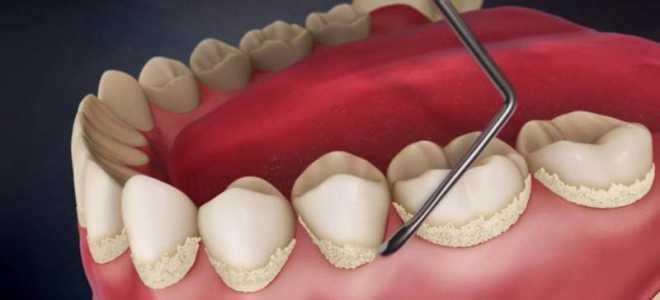 Можно ли обойтись без стоматолога: удаление зубного камня в домашних условиях