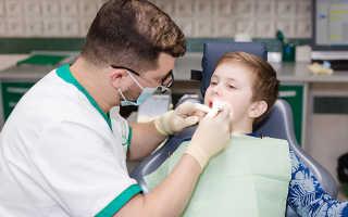 Как определить по фото гингивит? Симптомы и лечение у детей