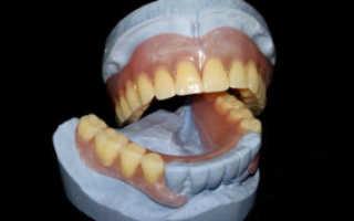 Вся правда о популярных недорогих зубных протезах