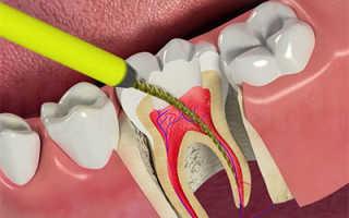 Боль в раздробленном зубе – нормально, опасно, что делать