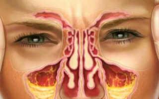Как избавиться от гайморита после имплантации зубов