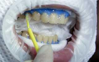 Светлые и темные стороны химического отбеливания зубов
