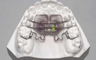 Как работает аппарат Марко Росса при исправлении суженной верхней челюсти