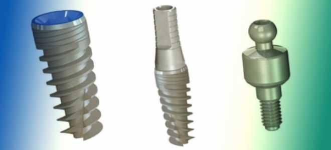 Имплантаты Denti System – очередная гордость немецких разработчиков