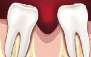 Базовая имплантация при потере костной ткани челюсти