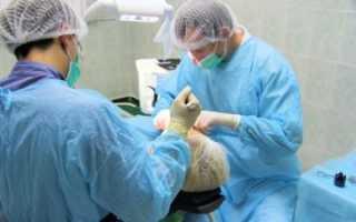 Актуальна ли еще чрезкостная имплантация и суть методики