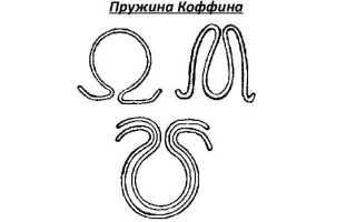 Принцип действия пружина Коффина в ортодонтических аппаратах