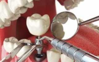 Что делает стоматолог имплантолог, и какие вопросы в его компетенции