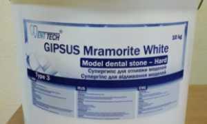 Основы применения и классификация гипса в стоматологии