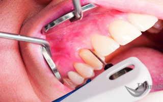 Как же стоматологи их различают? Главные отличия пародонтоза и пародонтита: симптомы и лечение