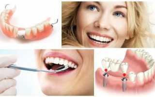 Протезирование зубов и имплантация – чем отличаются методики