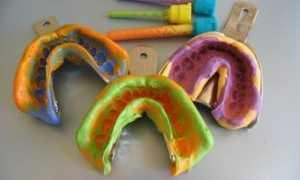 Виды оттискных материалов в ортопедической стоматологии и характеристики