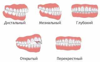 Самые эффективные методы ортодонтического лечения