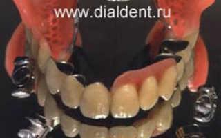 Телескопические зубные протезы – инновационный тандем эстетики и функциональности