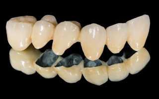 Металлокерамические коронки на передние зубы: что нужно знать