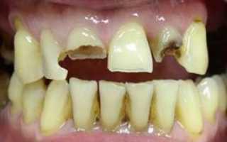 Использование нанокомпозитов в стоматологии для реставрации зубов