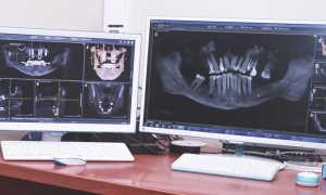 Какой снимок делают для имплантации зубов и почему он так важен?