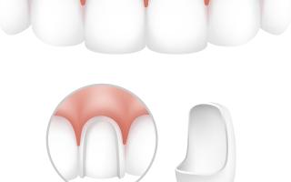 Болят зубы после установки виниров? В чем причина и что делать?