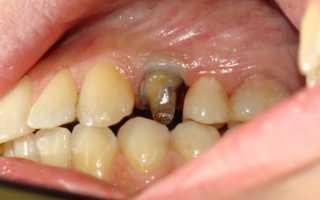 Как делается вкладка в зуб под коронку: фото и видео процесса