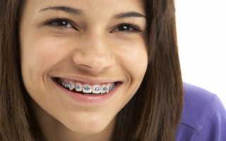 Есть ли альтернатива брекетам в современной ортодонтии