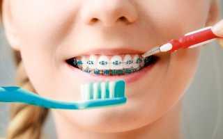 Надо беречь свою улыбку! Как правильно чистить зубы с брекетами в домашних условиях и у стоматолога?