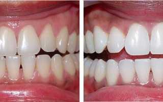 Отбеливание зубов Zoom 3: отзывы, цены, технология проведения