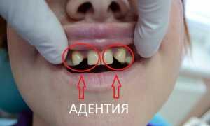 Риски, связанные с отсутствием зубов – вторичная и частичная адентия – Причины