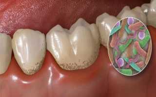 Масло чайного дерева для отбеливания зубов: проверенные временем рецепты
