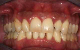 Возможно ли вернуть красивую улыбку? Протезирование зубов при пародонтите
