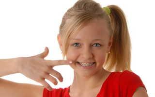 Брекеты для детей: особенности лечения и выбор брекетов