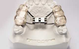 Тактика расширения верхней челюсти аппаратом Норда