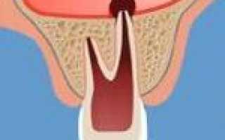 Перфорация пазухи – причины, симптомы, диагностика и лечение