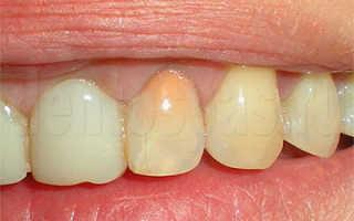 Прогноз при выздоровлении и протезировании зубов, ранее леченных резорцин-формалиновым методом