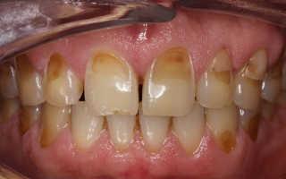 Излечима ли эрозия эмали зубов и опасности патологии