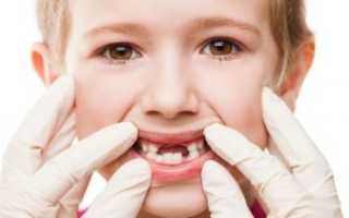 Гингивит у детей: какими препаратами проводить лечение