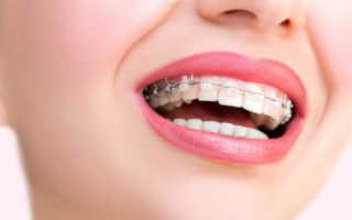 Незачем переживать и терпеть! Боль в зубах при брекетах: что делать и как облегчить?