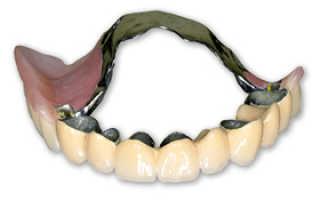 Бюгельный протез на нижнюю челюсть: фото, отзывы, плюсы и минусы