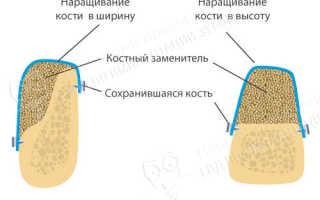 Самый подходящий материал для направленной костной регенерации