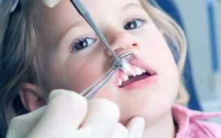 Протезирование молочных зубов: показания, противопоказания, виды конструкций