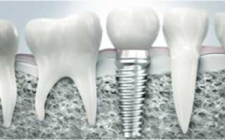 Зубной имплантат: из чего складывается стоимость установки