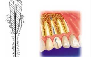 Обзор эндодонтически стабилизированных имплантатов